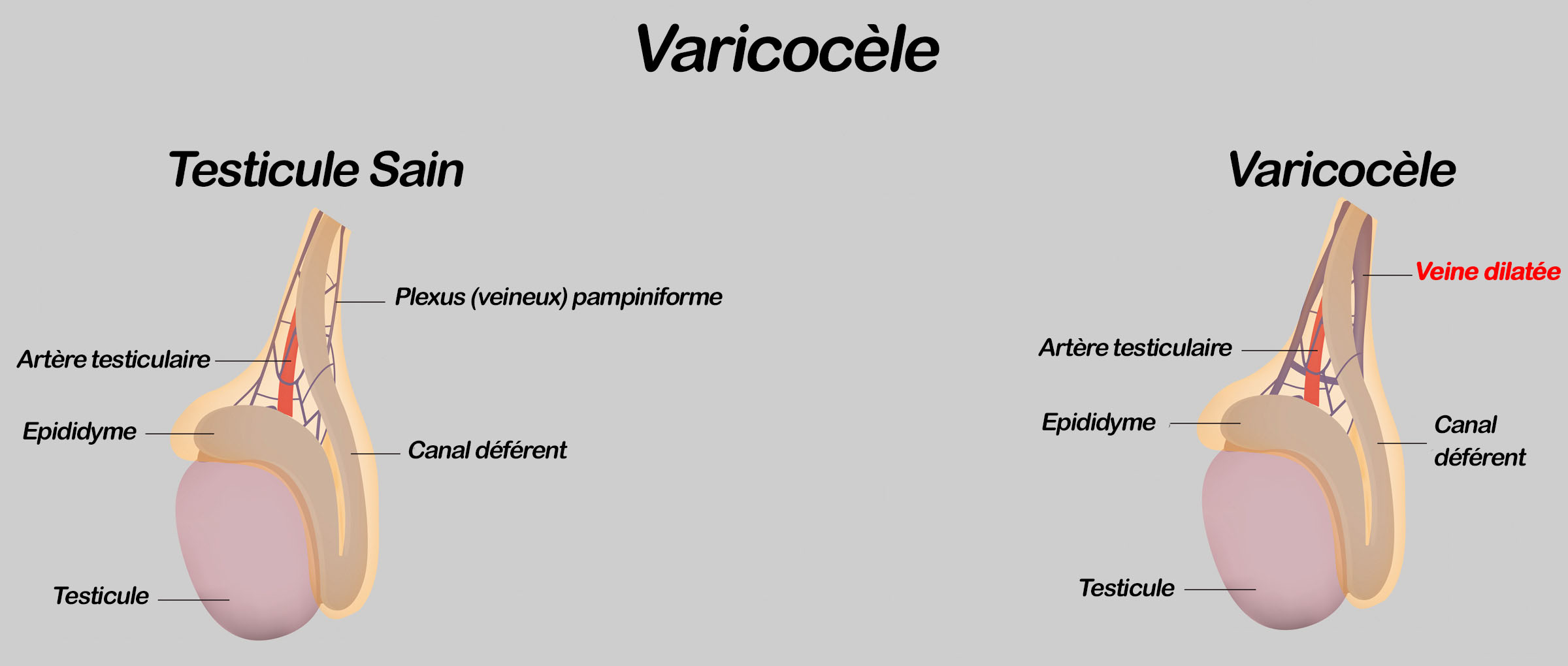 imagesVaricocele-11.jpg