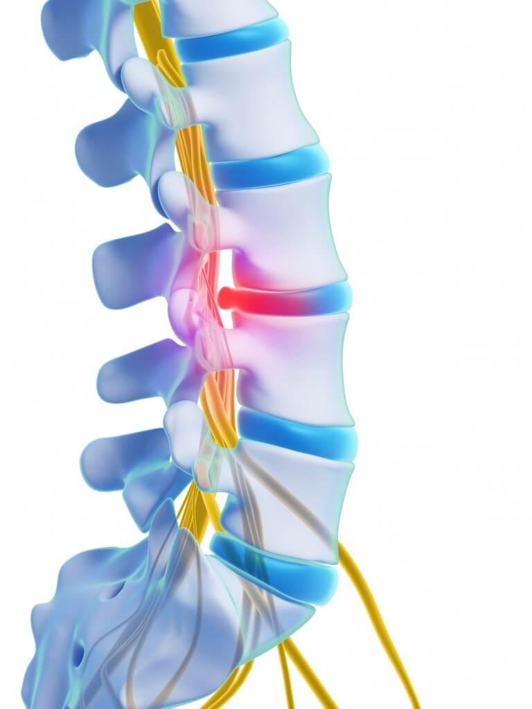 Les douleurs liées à la hernie discale